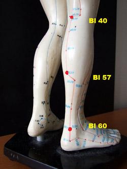 leg cramps, traditional Chinese medicine (TCM)