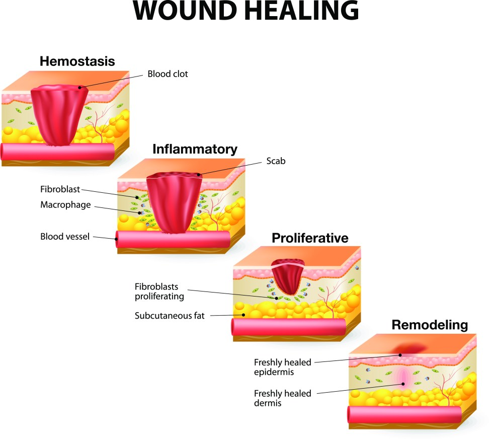 Image result for wound healing process