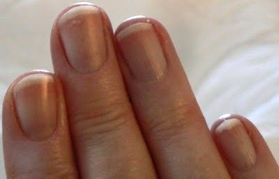 What Your Body Is Trying To Tell You: Fingernail Health | Shift ...