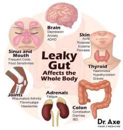 sintomas e tratamento virose