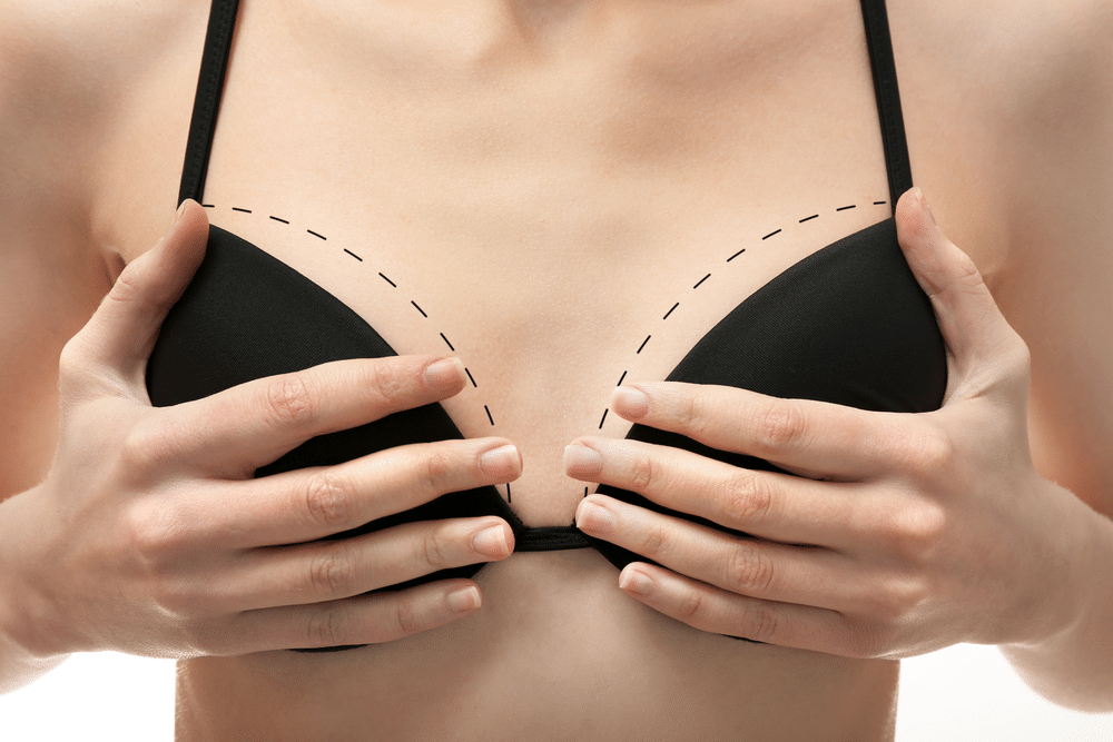 breast-lift-with-pideal-threads