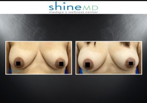 Breast Augmentation, Breast Augmentation With Fat Transfer and Lipomodelling