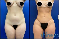 lipo 360 with BBL two months before and after picture