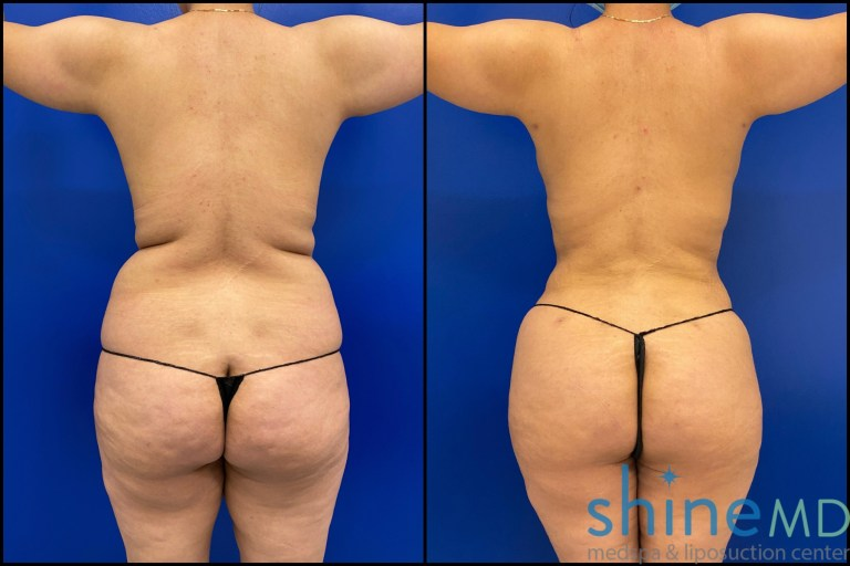 Snatched waist after liposuction 360