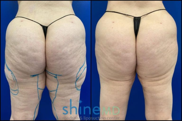 Back Inner Thigh lipo results photo gallery patient shinemd 002045