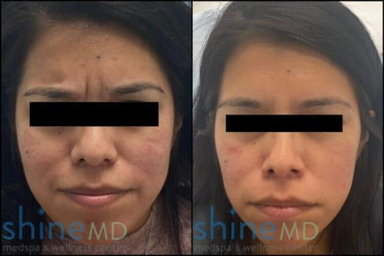 botox glabella before and after Patient 002069
