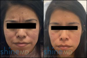 botox glabella before and after