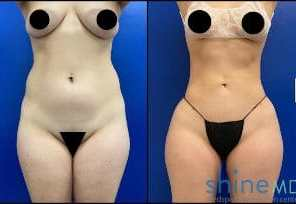 lipo 360 with BBL before and after image 5