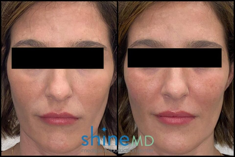 Radiesse for cheek fillers before and after image