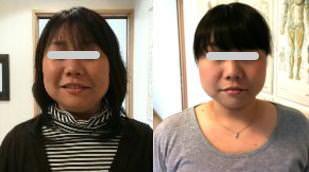 小顔矯正の比較画像3