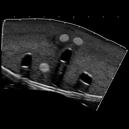 échographie structures internes fantôme d'entraînement nerfs et veines