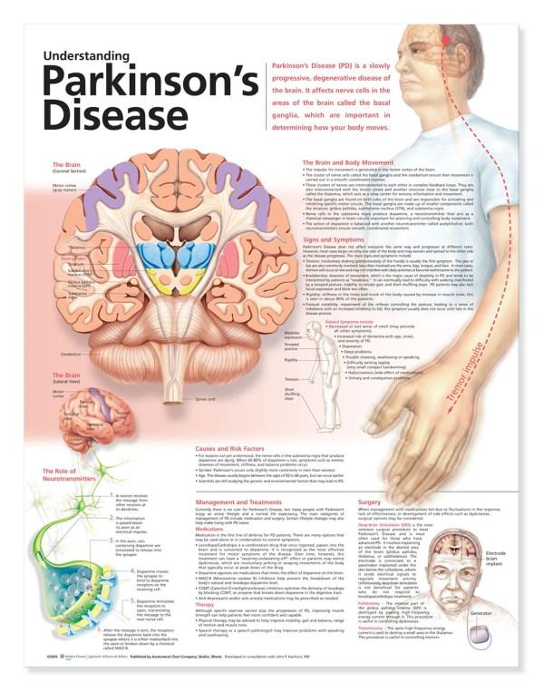 Understanding Parkinson's Disease Anatomical Chart, 2nd ...