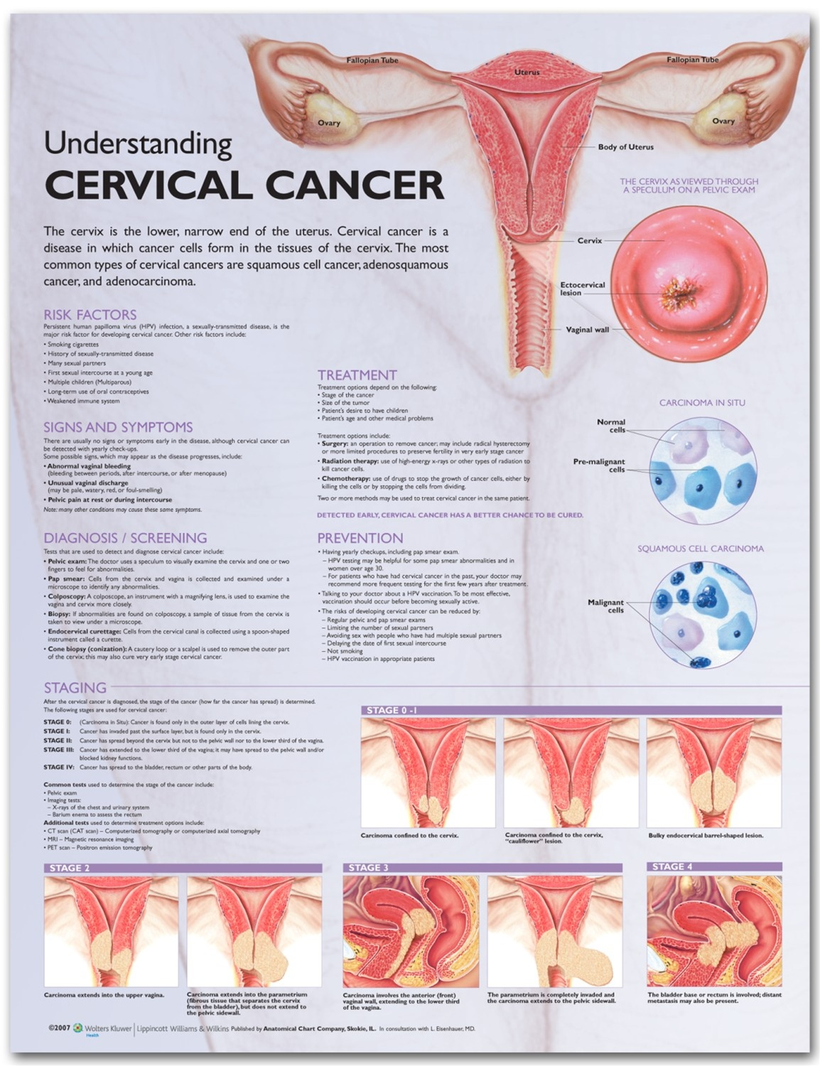 Understanding Cervical Cancer Anatomical Chart - Anatomy Models and Anatomical Charts