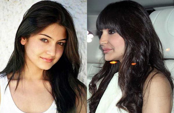 anushka's lip job-showbizbites
