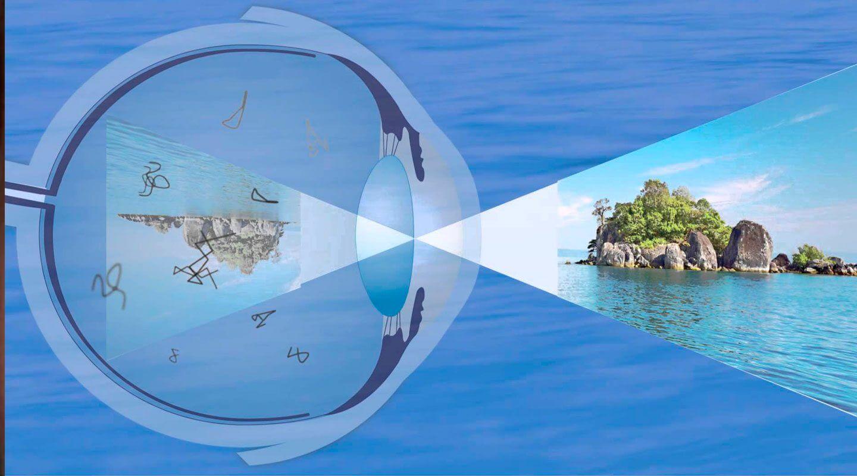 moscas volantes 1 - O que são aquelas coisas que se movem em nossos olhos?