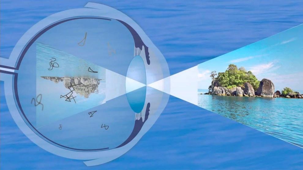 O que são aquelas coisas que se movem em nossos olhos? 6