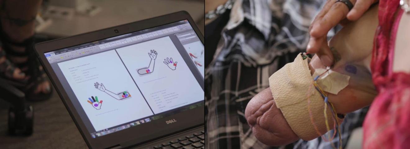 sensores - Nova geração de próteses biônicas pode revolucionar a sociedade