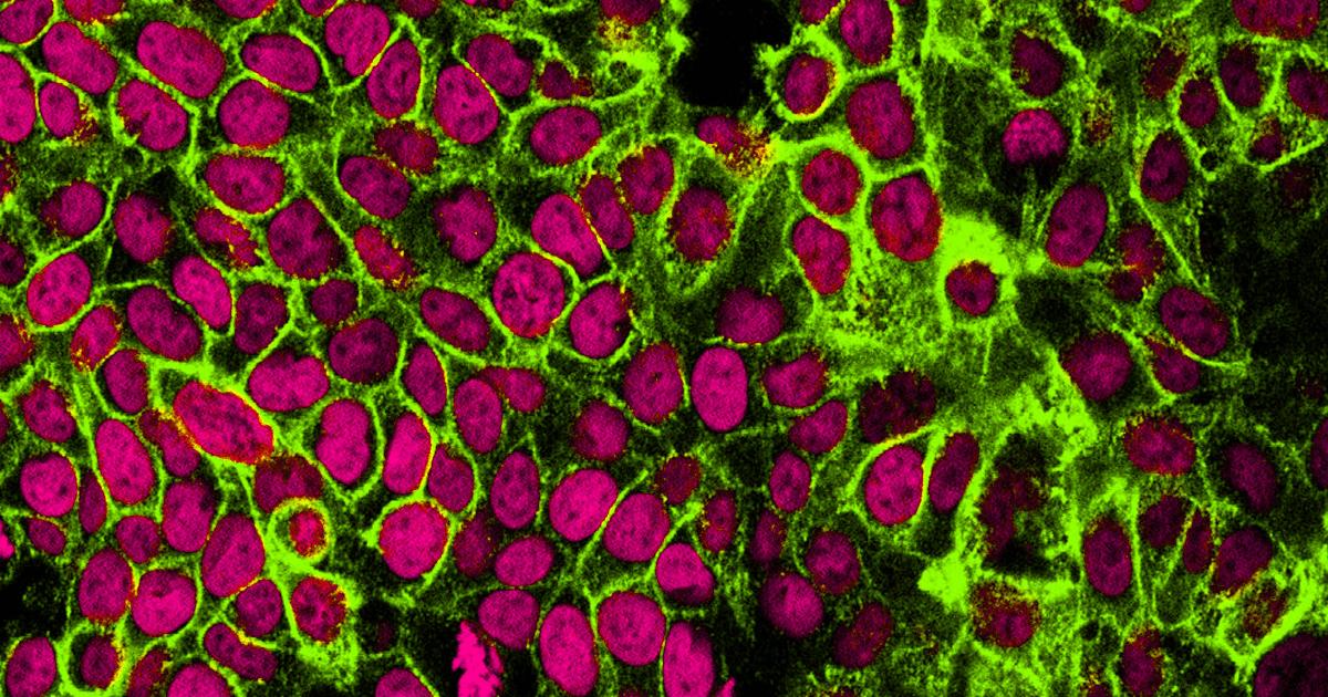 Cura para o câncer chega em um ano, afirmam cientistas israelenses 6