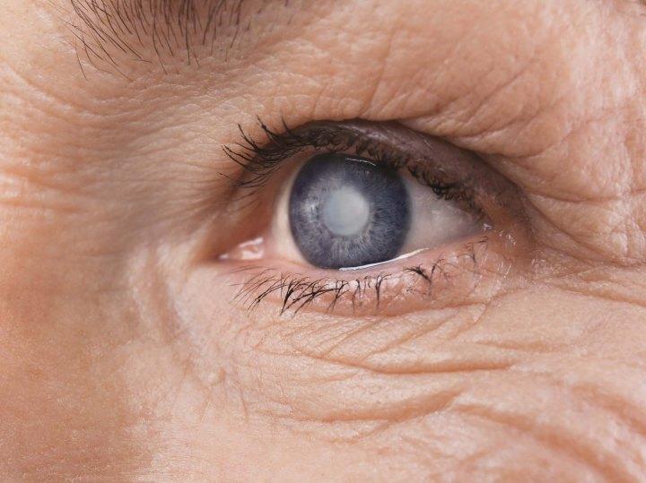 catarata 720x539 - Lentes de contato biônicas tornam sua visão 3 vezes melhor