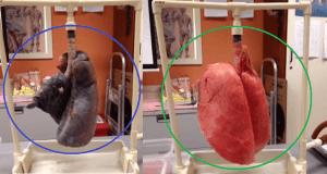 ¿Qué le ocurre a los pulmones de los fumadores?