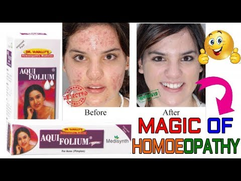 रातो रात पिंपल से पाए छुटकारा, How to Remove Pimples and Acne Marks, Patent Review of Acne & Pimple