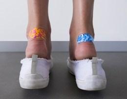 Menyra me e thjeshte sesi te kuroni flluskat e dhimbshme neper kembe.