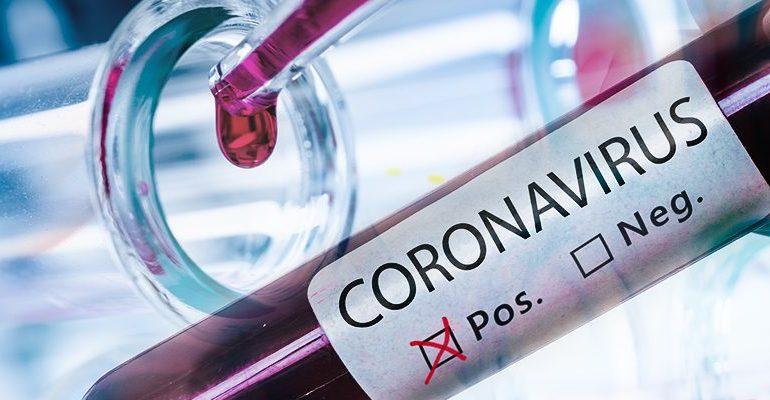 Coronavirus, niente panico