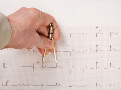 A Prolonged QT Interval Can Be Deadly