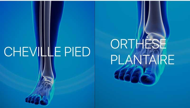 iBrace - Body scanner app for medical orthosis   Sidekick