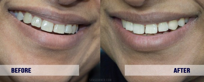 at home teeth whitening result