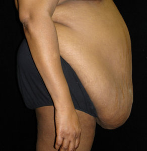 Image result for Panniculectomy Surgery to Remove Skin After Weight Loss