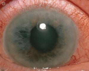 la enfermedad ocular llamada glaucoma provoca ese color en el ojo humano