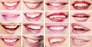 O Que a Forma Do Seu Sorriso Diz Sobre Você?