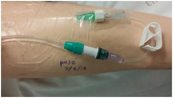 prolongateur-catheter-et-valve-anti-retour