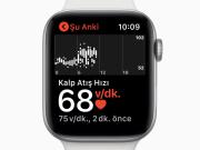 Apple Watch 4 EKG