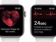 Apple Watch EKG Çekme Özelliği watchOS 5.2
