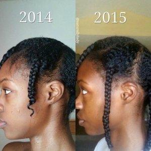 3 huiles essentielles contre la chute de cheveux #Hair #Haircare #chutedecheveux #huillesessentielles
