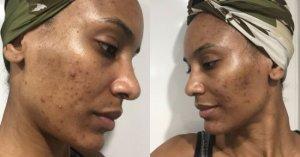 Masque à la carotte contre les cicatrices d'acné 1 #acné #beauty #beauty #skincare