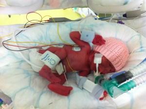premature baby at 28 weeks