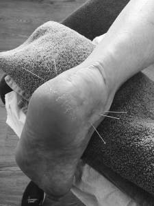 Soft Tissue Therapy Acupuncture