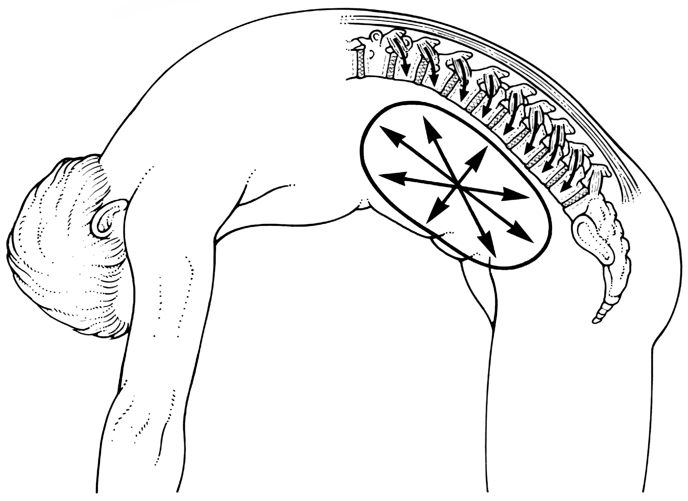 Shearers Back Pain