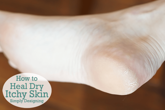 How to Heal Dry Itchy Skin