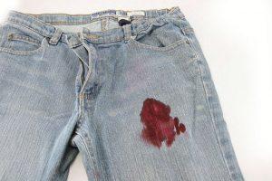 Tips Membersihkan Noda Darah