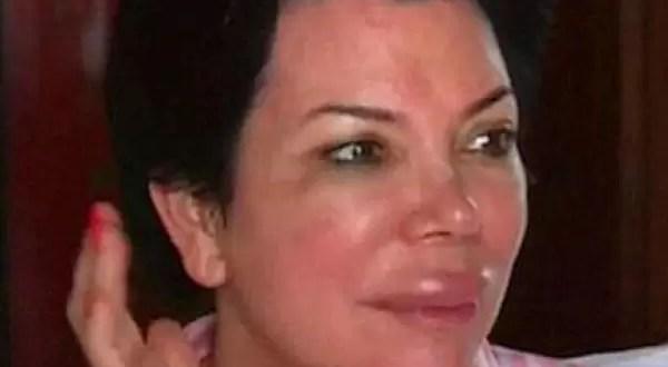 Kris Jenner se desforma la cara tras intervención quirúrgica