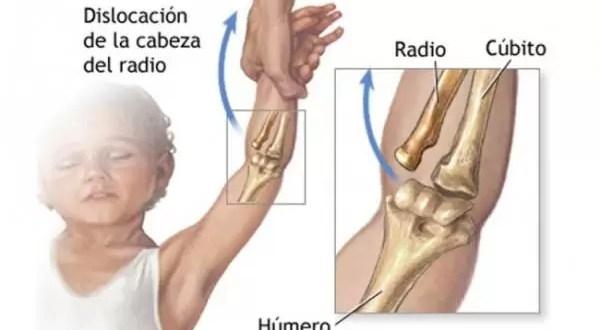 Cuál es la lesión mas común durante la infancia?