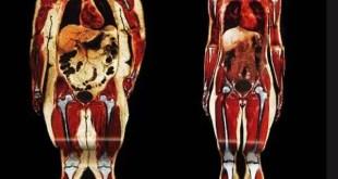Cómo afecta la obesidad a nuestro cuerpo