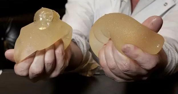 Los implantes mamarios PIP no provocan cáncer