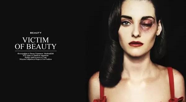 Polémicas imágenes de modelos con heridas