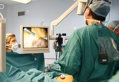 Preguntas y respuestas sobre la cirugía bariátrica