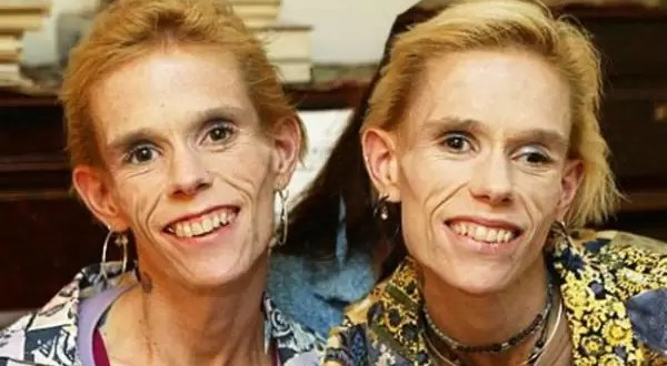 Mueren juntas las gemelas anoréxicas